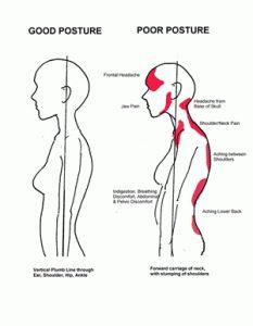 Good posture bad posture for dance